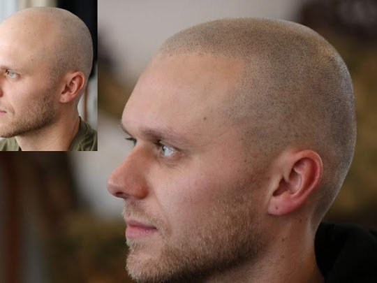 SCALP MICROPIGMENTATION-SMP